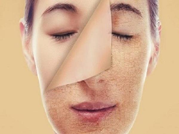 Da mặt khô và cách chữa trị da mặt khô tại nhà